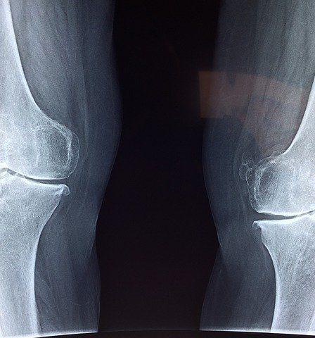 Reumatoidalne zapalenie stawów może doprowadzić do ich zniekształcenie i usztywnienia.